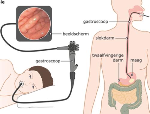 ervaring gastroscopie